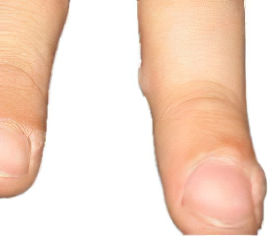 Народное средство от бородавок на пальцах рук