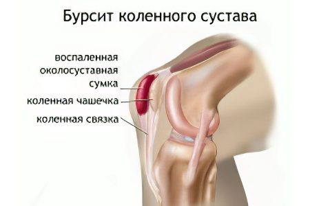 Бурсит коленного сустава – препателлярный, инфрапателлярный ...