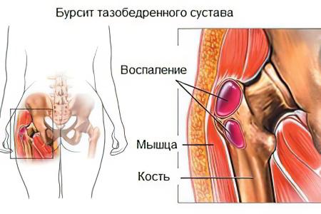 Бурсит тазобедренного сустава симптомы и лечение чайный гриб и суставы