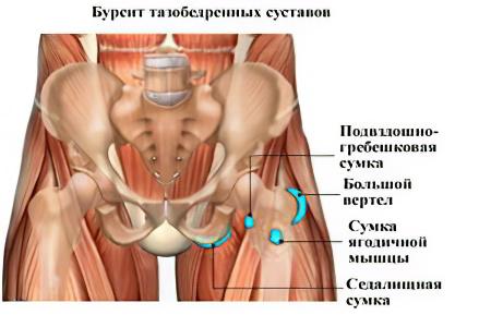 Острая боль тазобедренного сустава боль в суставах озноб грипп