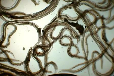 Как и где пройти диагностику на паразитов