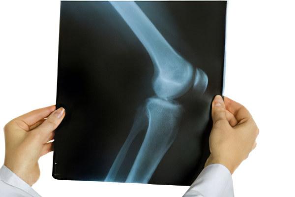Изображение - Периартрит коленного сустава лечение deagnostika_periatrita_kole