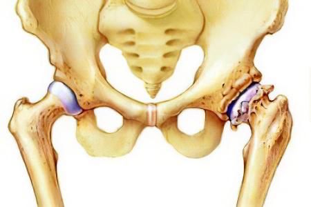 Деформ.артроз тазобедренного сустава техника наложения холодного компресса на область пораженного сустава