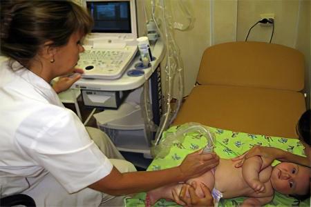 Дисплазия тазобедренного сустава у новорожденных