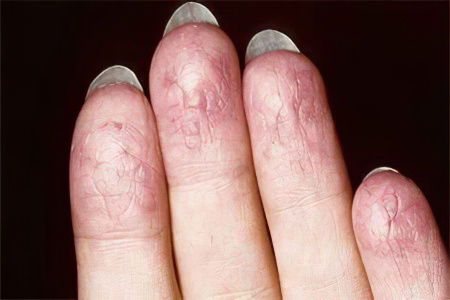 От чего появляется экзема на пальцах рук