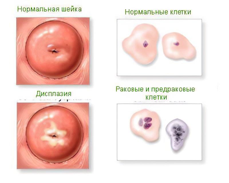 Дисплазия шейки матки – причины, симптомы, лечение и 1, 2 и 3 степени дисплазии шейки матки