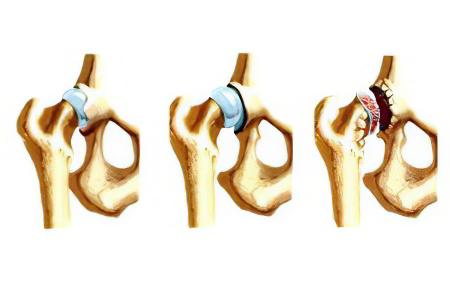 Дисплазия тазобедренного сустава – признаки, причины и лечение