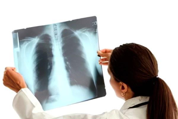 Доброкачественный рак легких