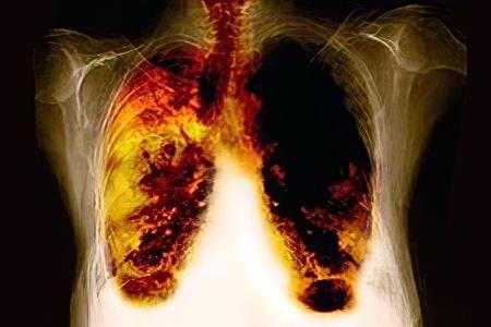 Эмфизема легких симптомы и лечение у взрослых
