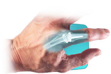 Эндопротезы суставов пальцев рук что видно на узи коленного сустава