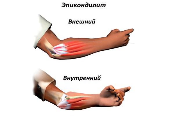Укол в локтевой сустав при эпикондилите видео рецепт от боли и хруста в суставах