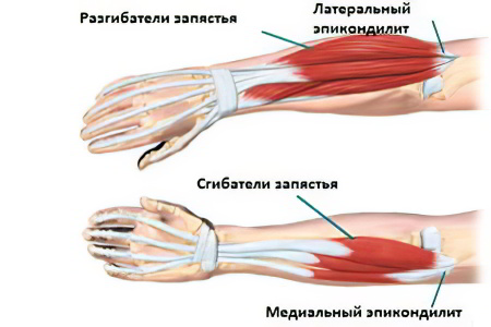 Наружный и внутренний эпикондилит