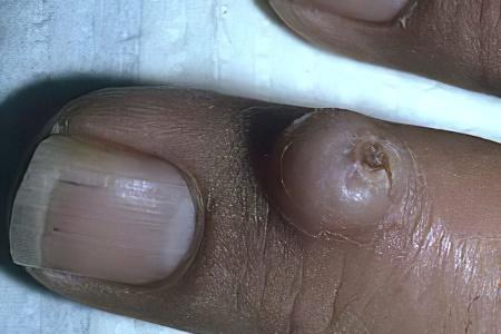 Фиброма сустава пальца руки пястно-фаланговый сустав