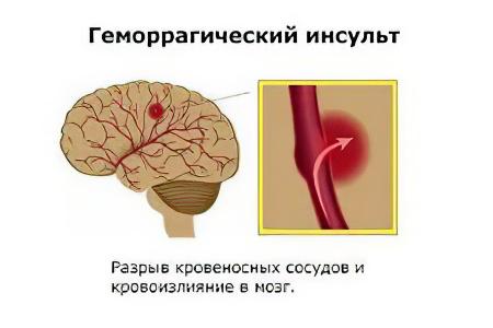 Геморрагический инсульт кровоизлияние головного мозга: симптомы