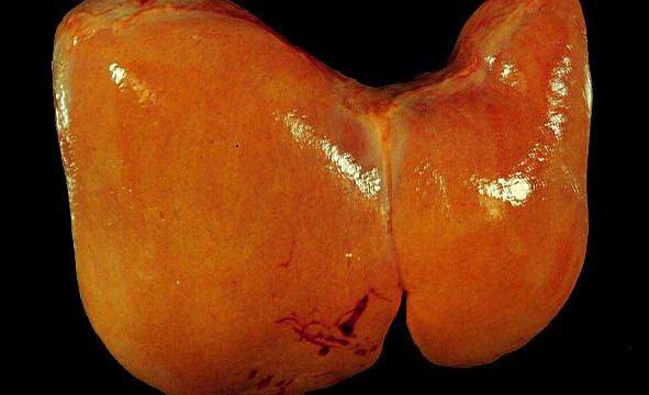 Гепатоз – холестатический гепатоз, симптомы и лечение