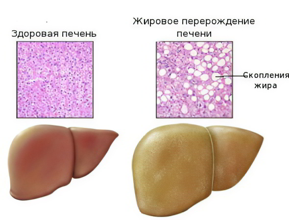 Гепатоз печени – жировой гепатоз печени, симптомы и лечение