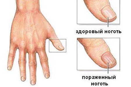Ушиб ногтя лечение народными средствами