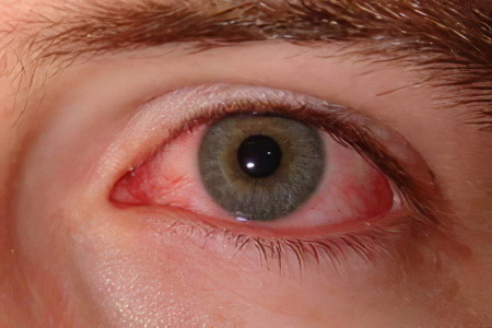 Опух глаз: что делать? 92