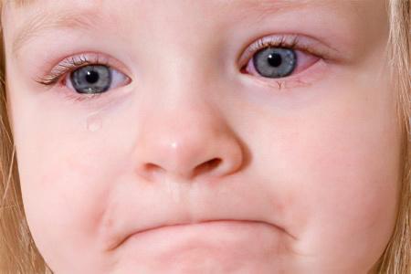 У ребенка покраснели глаза