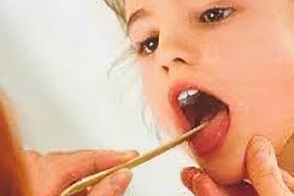 Гнойная ангина у детей
