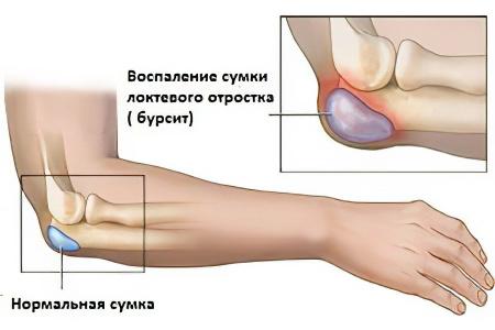 Увеличение лимфоузлов в локтевом суставе артроз мелких суставов ног лечение