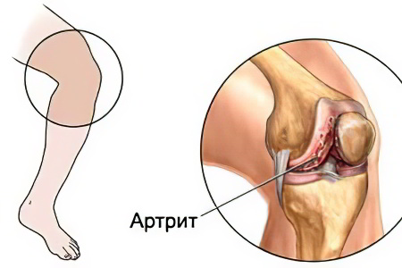 Острый гнойный артрит коленного сустава причины что есть чтобы не болели суставы