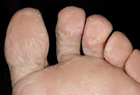Грибка на ногтях лечение
