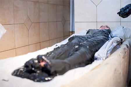 Коксартроз тазобедренного сустава – причины, симптомы, 2 и 3 степени, лечение