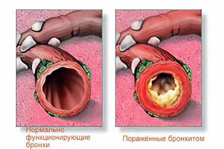 hronicheskii-bronhit457.jpg