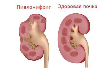 Что такое хронический пиелонефрит почек