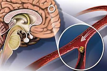 Ишемический инсульт: симптомы, последствия, лечение – МЕДСИ