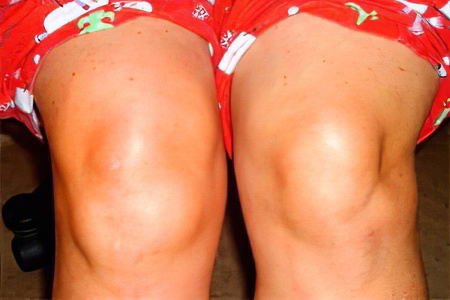 Как убрать жидкость в суставе стопы отзывы о замене коленного сустава в новосибирске