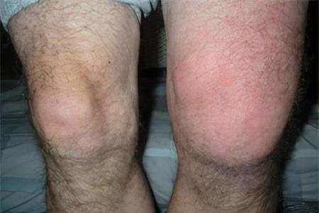 Суставная жидкость в суставе стопы чем лечить замена плечевых суставов в поволжье