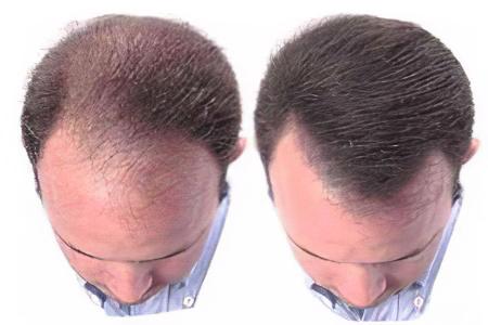 Средство стимулирующие рост волос