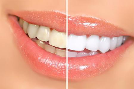Отбеливание зубов в домашних условьях