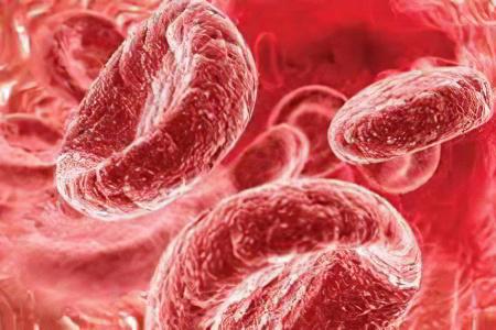 как понизить повышенный холестерин в крови