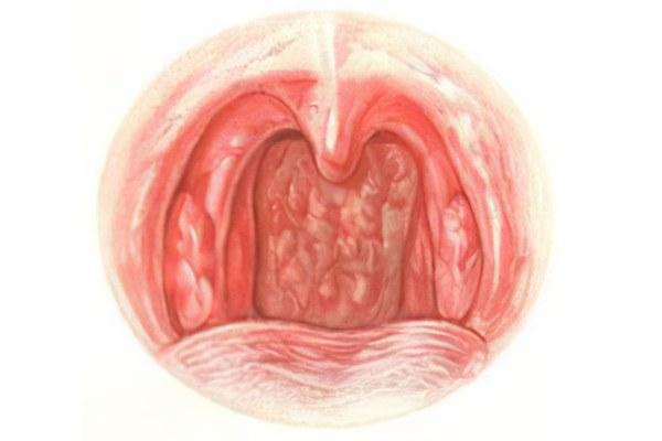 катаральный фарингит фото