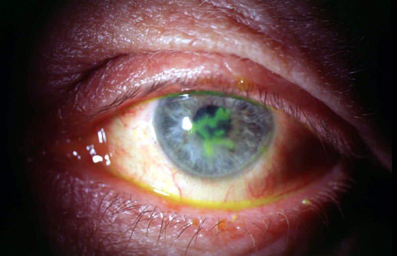 Кератит – герпетический кератит, причины и лечение