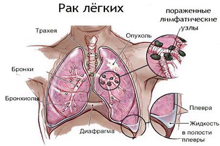 Периферический рак легкого: разновидности, методы лечения и прогноз