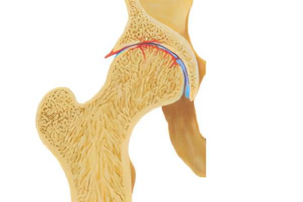 Причины коксартроза тазобедренного сустава