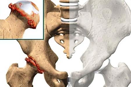 Защемление верхних грудных позвонков лечение в домашних условиях