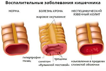 Вирусное заболевание лечение народными средствами