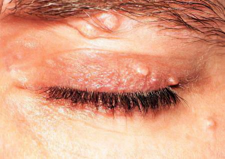 Контагиозный моллюск – контагиозный моллюск век, симптомы и лечение