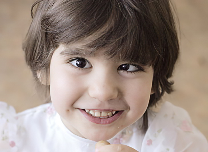 Причины и лечение косоглазия у детей 72
