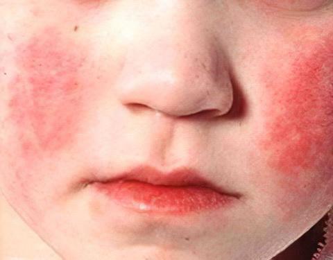 аллергический дерматоз у детей фото
