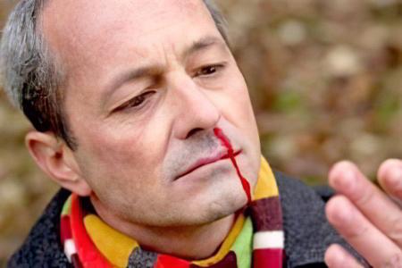 Причины частых носовых кровотечений и методы их остановки