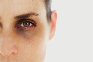 Каким цветом маскировать коричневые круги под глазами