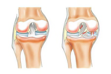 Латеральный мениск коленного сустава клиника германиипо остеоартроз коленного сустава