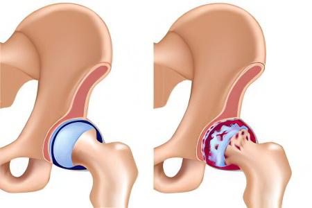 Боль в области тазобедренного сустава у детей лфк при заболеваниях суставов