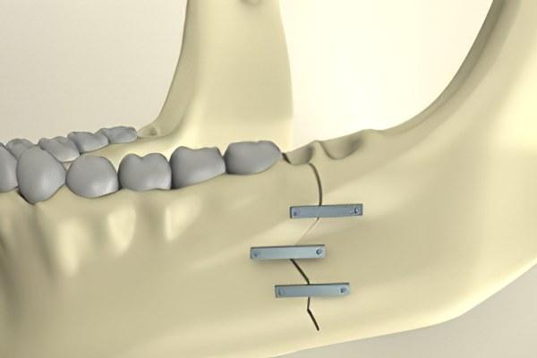 Что нельзя делать при переломе нижней челюсти